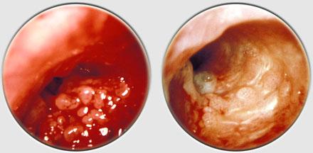 Dr. Diag - Papillomatosis respiratorica reccurentis